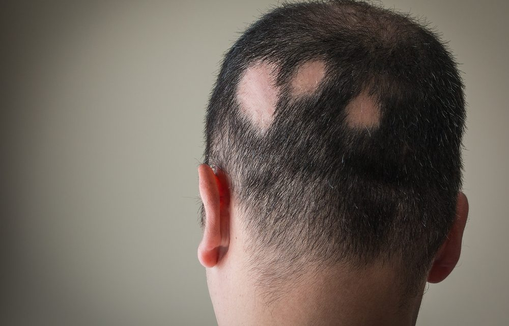 Alopecia areata: cause ed effetti